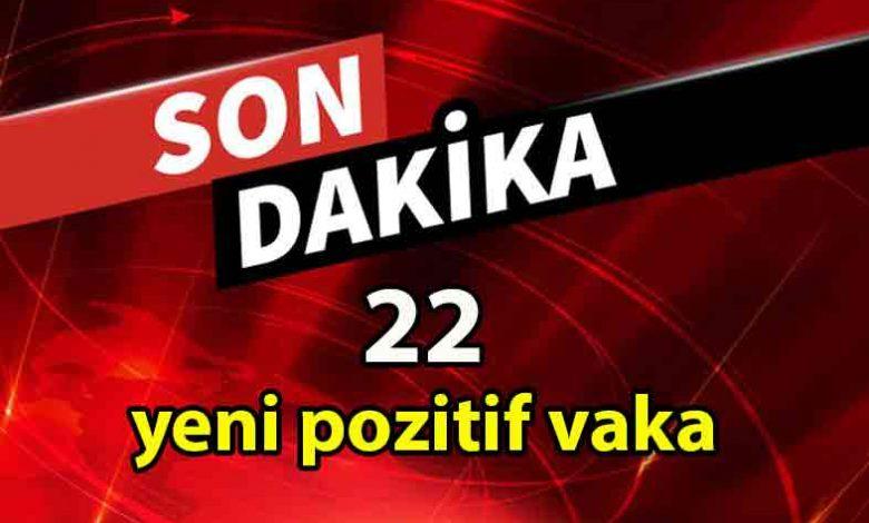 ozgur_gazete_kibris_Güneyde_bugun_toplam_3_bin_477_test_yapıldı