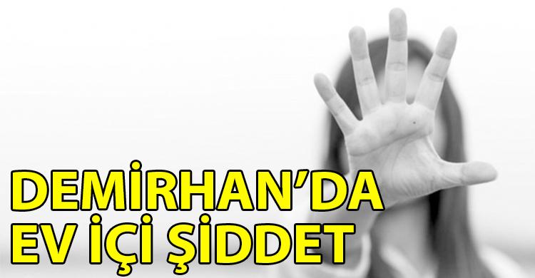 ozgur_gazete_kibris_Direnisci_sag_gozu_ve_yanagindan_yaralandi